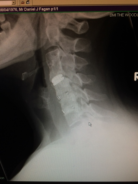 disc replacement,neck surgery,treatment for neck pain
